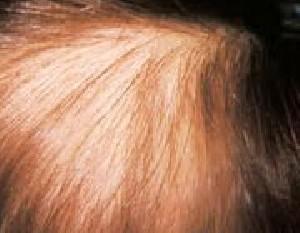 آیا بیاختیار موهای خود را میکنید؟
