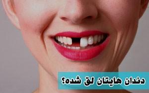 آیا دندان لق شده قابل درمان است؟