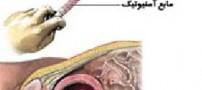 چگونه متوجه بیماری های جنین در رحم شویم؟
