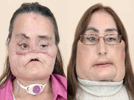 عکسهایی از اولین پیوند اعضای صورت در جهان