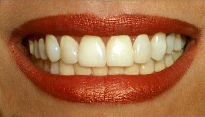 چهار مهم در مورد دندان هایتان