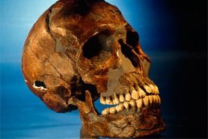 بیماری سل در فسیل 500 هزار ساله کشف شده