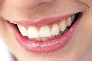 آیا کرم دندان وجود دارد؟