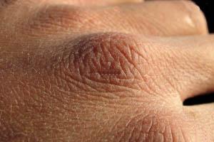 استرس و داروهای ضد افسردگی عوامل پیری پوست