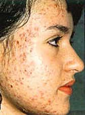 عوامل پیدایش جوش صورت و درمان آن