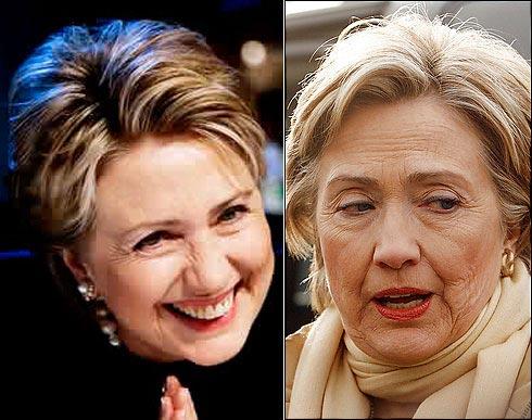 عکس هیلاری کلینتون قبل و بعد از عمل جراحی زیبایی!