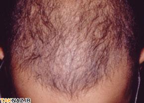 ریزش مو استرسی