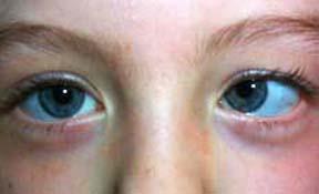 انحراف چشم (استرابیسم)
