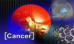 مردان 40 درصد بیشتر از زنان بر اثر ابتلا به سرطان میمیرند