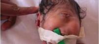 تولد نوزادی عجیب در اسراییل !!!!(+ عکس)