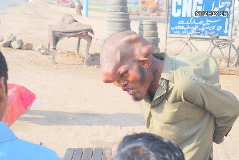 عکسی از عجیب ترین سر انسان در جهان