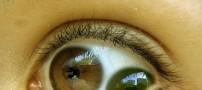 عجیب ترین چشم دنیا با 2 عنبیه