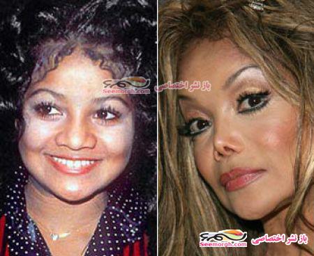چهره خواهر مایکل جکسون پس از جراحی زیبایی