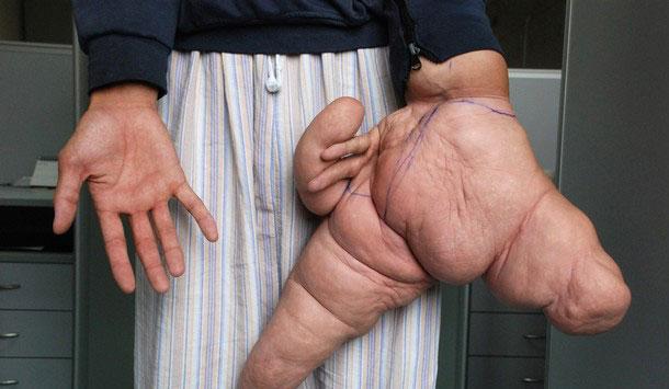 عجیب ترین دست دنیا با 10 کیلو وزن و 30 سانتیمتر قد