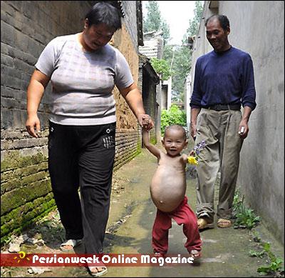 دختر یکساله ای که ۹ ماهه باردار است (+عکس)