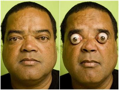 مردی که چشمانش را 4 سانتی متر بیرون می آورد