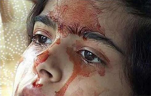 دختری بسیار عجیب که خون گریه میکند (+عکس)