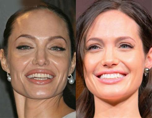 عکسی از آنجلینا جولی قبل و بعد از جراحی زیبایی