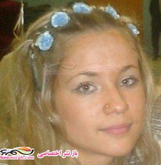 عکسهای دختری که زیباییاش را به سادگی از دست داد | www.irannaz.com