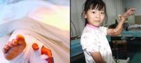 پیوند دست دختری چینی به پایش+عکس
