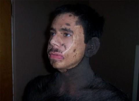 عکس هایی باور نکردنی از مرد خرس نما