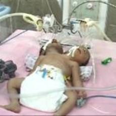 به دنیا آمدن دختری دو سر در زاهدان + عکس