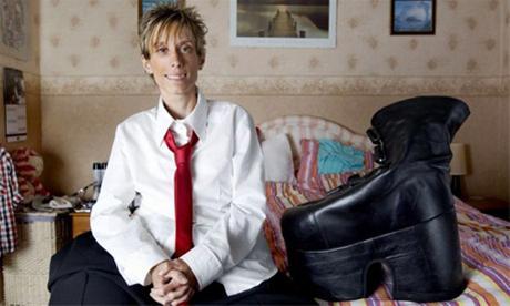 عکس هایی از زنی با پاهای 70 کیلویی