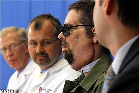 جراحی عجیب صورت یک مرد ( اگر دلشو نداری نبین )