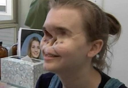 عکس های زنی که 11 سال بدون صورت زندگی کرد !!