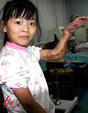 عکس های عجیب ترین جراحی های انجام شده جهان