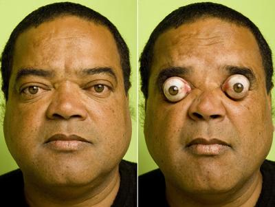 مردی با جالب ترین و عجیب ترین چشم های دنیا