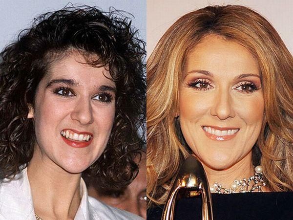 عکس های سلن دیون قبل و بعد از جراحی زیبایی