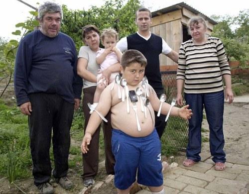 عکس های عجیب ترین پسر دنیا با بدن آهن ربایی !!!!