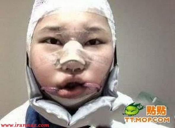 دختری که آنقدر جراحی زیبایی کرد تا ... !! + عکس