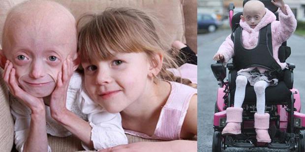 دختری عجیب که در 7سالگی پیر شد   || www.fogholade.mahtarin.com