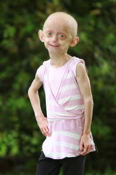 دختری عجیب که در 7 سالگی پیر شد + عکس