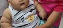 چاقترین کودک جهان در چین