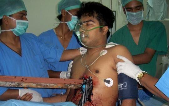 10 معجزه باور نکردنی از دنیای پزشکی + تصاویر