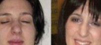 دختری 21 ساله با عجیب ترین چشمان دنیا !!