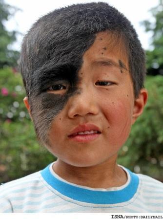 پسری که یک طرف صورتش مو دارد +عکس