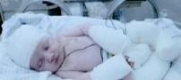 نوزادی که با بدنی سوخته متولد شد!! +عکس