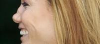 14 نوع بینی در جهان داریم ! بینی شما كدام است؟