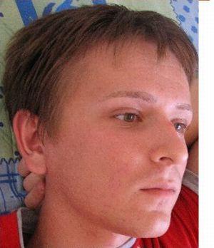 عکسهایی از چهره یک مرد پس از تغییر جنسیت