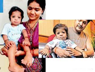 عجیب ترین پسر دنیا در هند با 34 عدد انگشت +عکس
