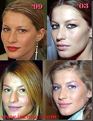معروف ترین زنان هالیوود، قبل و بعد از عمل زیبایی!