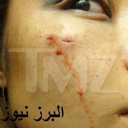 حمله به خواننده معروف و مجروح کردن وی +تصاویر