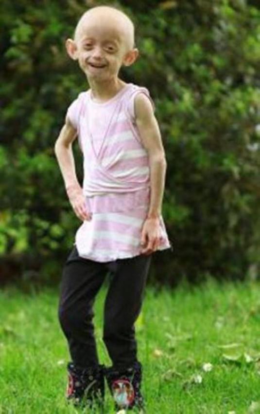 دختری که در کودکی شبیه زنی 80 ساله شد! +عکس