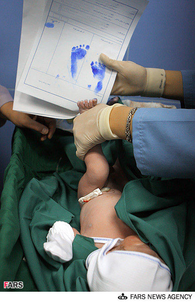 عکس های زایمان یک زن به وسیله هیپنوتیزم در ایران