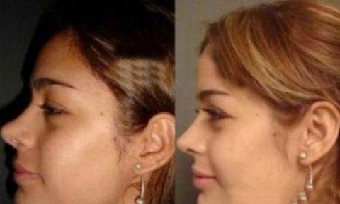 عکس های قبل و بعد عمل زیبایی یک مانکن معروف