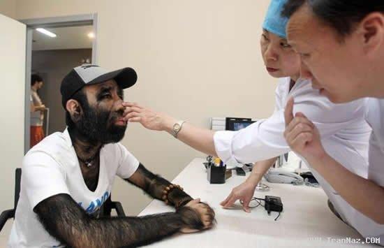 عکس های عجیب ترین و پر مو ترین مرد جهان در چین